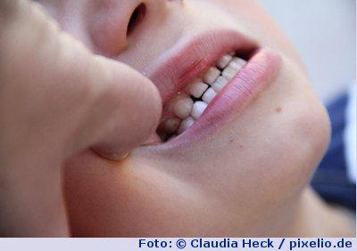 mundschleimhautentzündung symptome
