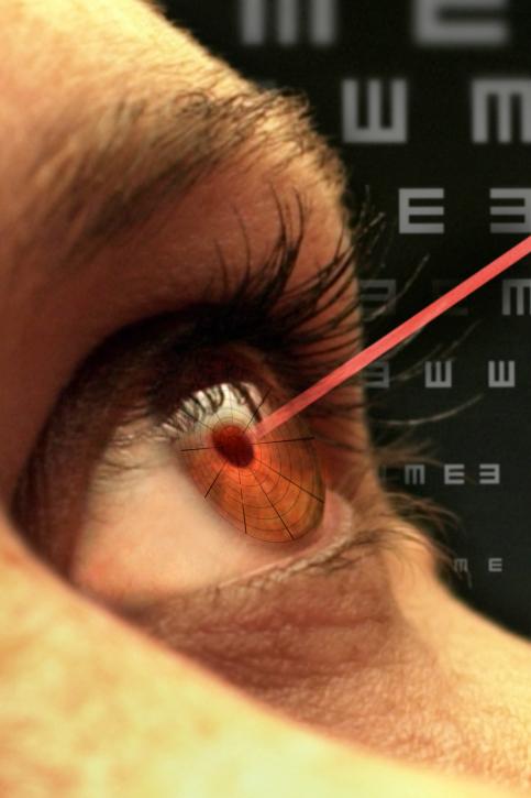 mit laserkorrektur sehschwäche beheben