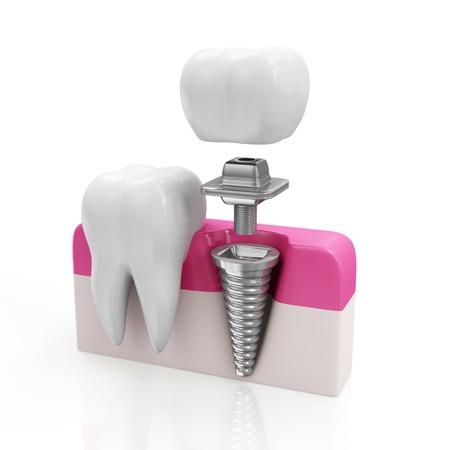 neue zähne und künstliche zahnwurzeln