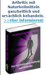 Arthritis behandeln